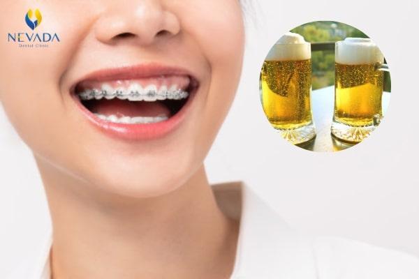 niềng răng uống bia được không, niềng răng có uống bia được không, niềng răng có được uống rượu bia không, niềng răng uống bia, niềng răng có được uống bia