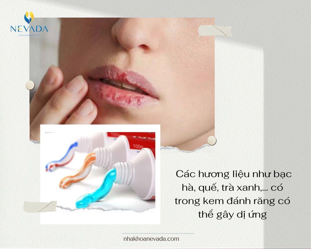 dấu hiệu bị dị ứng kem đánh răng, dấu hiệu dị ứng kem đánh răng, cách chữa dị ứng kem đánh răng, trẻ bị dị ứng kem đánh răng, bị dị ứng bôi kem đánh răng