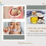 Cách lấy cao răng bằng dầu dừa – Hiệu quả không tưởng mà bấy lâu bạn chẳng hề hay biết