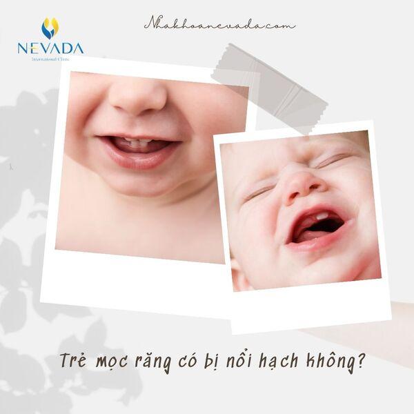 mọc răng có bị nổi hạch không, mọc răng có nổi hạch không, trẻ mọc răng có nổi hạch không, sốt mọc răng có nổi hạch không, mọc răng nổi hạch cổ, mọc răng nổi hạch, trẻ mọc răng nổi hạch, bé mọc răng bị nổi hạch, trẻ mọc răng có nổi hạch, trẻ mọc răng có bị nổi hạch không, bé nổi hạch khi mọc răng