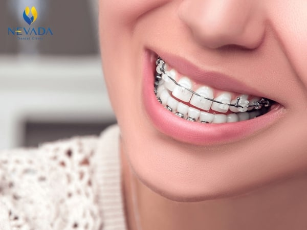 bảng giá chi phí niềng răng, niềng răng giá bao nhiêu tiền, chi phí niềng răng hết bao nhiêu tiền, chi phí niềng răng, chi phí niềng răng 1 hàm, chi phí niềng răng khấp khểnh, khuyến mãi niềng răng, bảng giá niềng răng, giá niềng răng, bang gia nieng rang, nẹp răng mất bao nhiêu tiền, niềng răng hết bao nhiêu tiền, niềng răng giảm giá, báo giá niềng răng, giá các loại niềng răng, giảm giá niềng răng, gia nieng rang, niềng răng bảng giá, niềng răng khuyến mãi, niềng răng giá, bảng giá niềng răng hô, niềng răng cần bao nhiêu tiền, niềng răng bao nhiêu tiền, niềng răng mất bao tiền