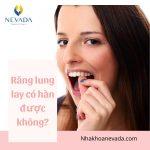 Răng lung lay có hàn được không? Khắc phục răng lung lay như thế nào tốt nhất?